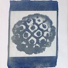 Bacteriën, virussen en schimmels - medewerkers Rijnstate